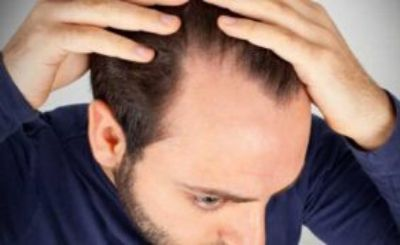 HAIR LOSS BASICS